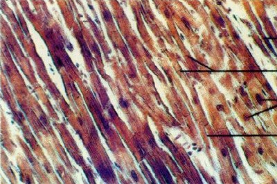 Muscle and Connective Tissue