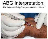 ABG Interpretation: Partially and Fully Compensated Conditions