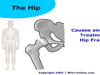 Causes and Medical Treatment of Hip Fractures