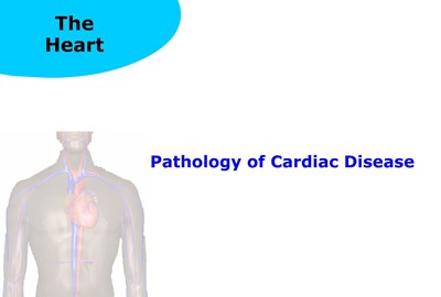 Pathology of Cardiac Disease (Screencast)